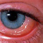 Аллергический риноконъюнктивит: причины, симптомы и как лечить