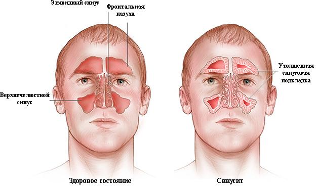Здоровое состояние и синусит