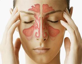 Аллергический синусит: причины, симптомы, чем и как лечить