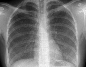 Аллергическая пневмония: основные причины, симптомы и лечение