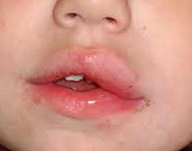Отек губы при аллергии: причины и как его снять