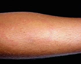 Тепловая крапивница: симптомы, виды, лечение, фото