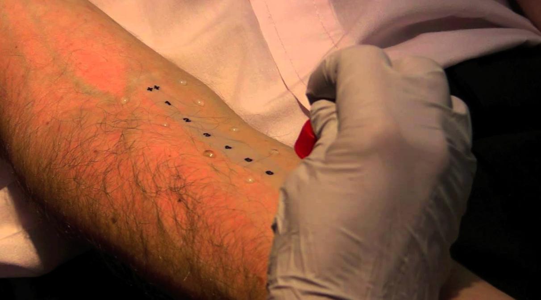 Тест на кожу