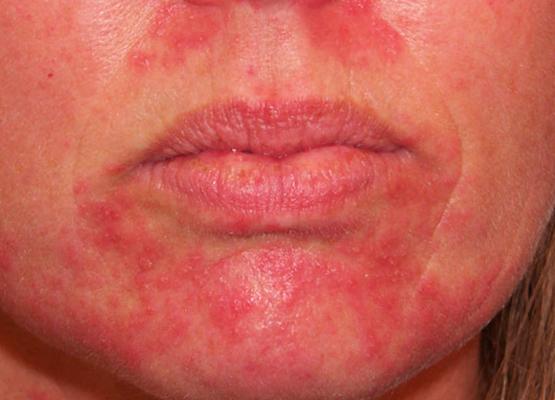Стероидный дерматит на лце