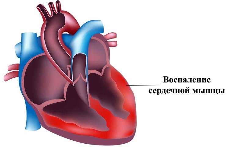Воспаление сердечной мышцы