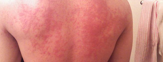 Проявление аллергии на воду у детей