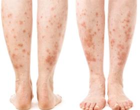 Аллергия на ногах у детей и взрослых: причины, симптомы и что делать