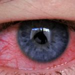 Аллергия на глазах: виды, симптомы и лечение