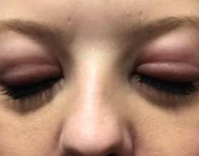 Аллергия на клей для наращивания ресниц: симптомы и что делать