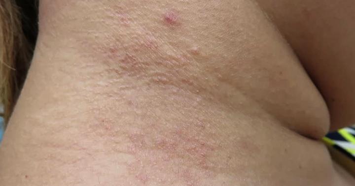 Проявлении аллергии на шее