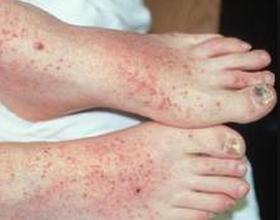 Аллергический васкулит: причины появления, симптомы и как лечить