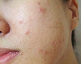 Аллергические прыщи на лице: симптомы, причины и что делать