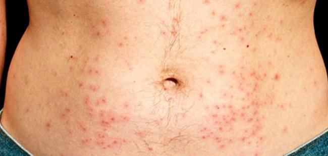 Аллергическая сыпь на теле