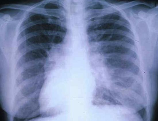 Экзогенный аллергический альвеолит на снимке