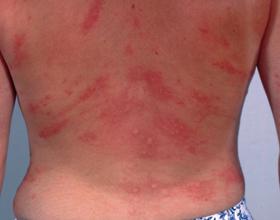 Аллергия, красные пятна и зуд на коже: причины, симптомы и лечение