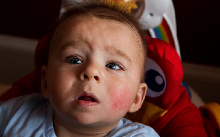 У мальчика аллергия
