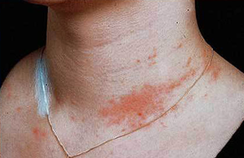 Аллергия на никелевою цепеочку