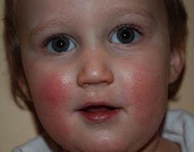 Аллергия на щеках у ребенка: симптомы и чем лечить (с фото)