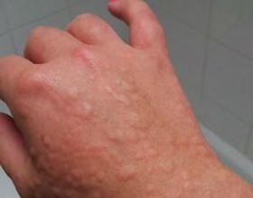 Аллергия на ветер: причины появления, симптомы и что делать