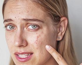 Аллергия на косметику: причины, симптомы и лечение