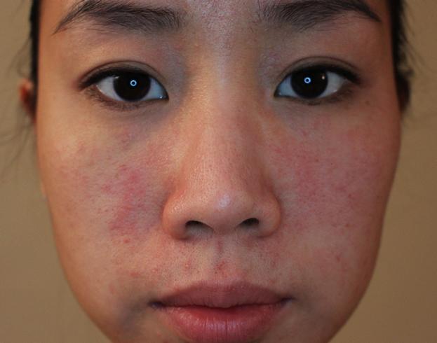 Аллергия на пот на лице