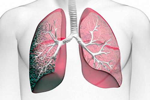 Как выглядит экзогенный аллергический альвеолит