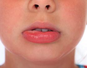 Если при аллергии опухли губы: причины и что делать