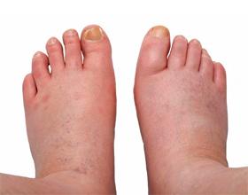 Если при аллергии отекли ноги: причины и что делать