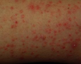 Пузырчатый дерматит: основные причины, симптомы и лечение