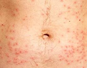 Аллергическая сыпь: причины возникновения, симптомы и лечение