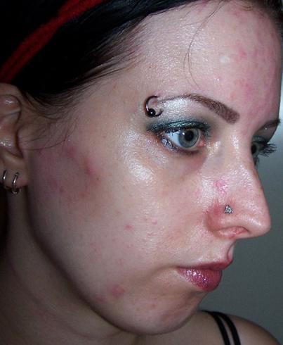 Сыпь и краснота на лице
