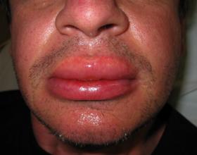 Если при аллергии отекает лицо: основные причины и что делать