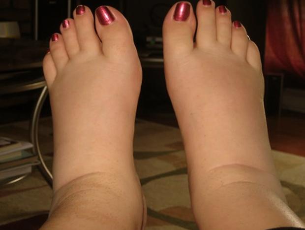 Опухоль ног