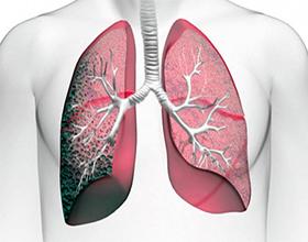 Экзогенный аллергический альвеолит: симптомы, причины и лечение