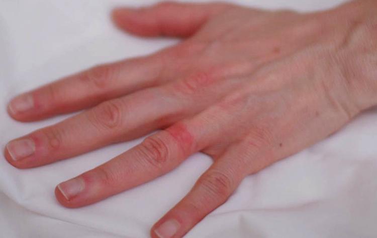 Аллергия от золотого кольца